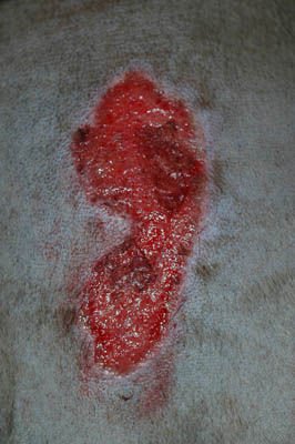 FROSTBITE-INDUCED SKIN LESIONS IN A WEIMERANER
